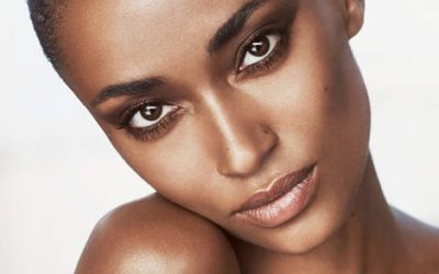 How To Prevent and Reduce The Appearance Of Acne Scarring